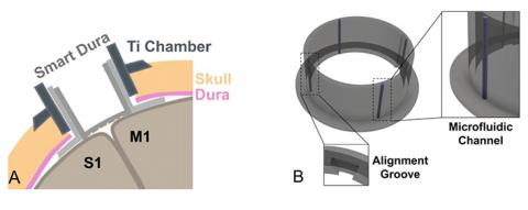 smart dura graphic illustration (a and b)